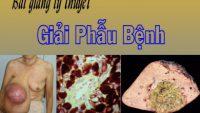 Bài giảng lý thuyết giải phẫu bệnh