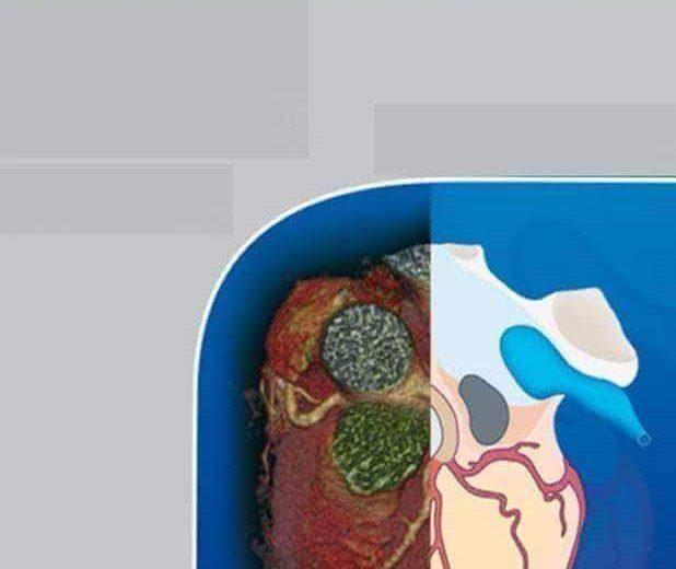 Giải Phẫu Cắt Lớp: CT – MRI. Phần Ngực Bụng Chậu
